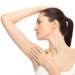 Mitai apie lazerinę epiliaciją