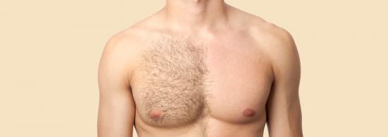 mitai apie lazerine depiliacija