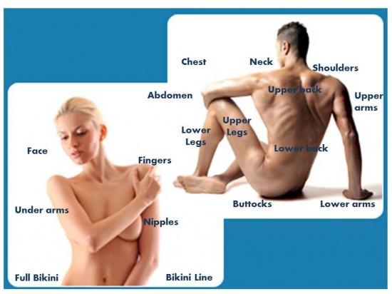 Moterims ir vyrams būdingos fotoepiliacijos zonos